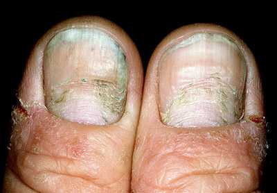 Посмотрите на свои ногти. Эти 12 отклонений могут многое рассказать о вашем здоровье